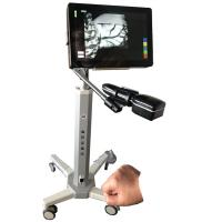 China Infrared Camera Imaging Infrared Vein Locating Device Safety With No Laser For Hospital and Clinic wholesale