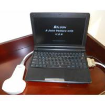 Digital Wireless Handheld Ultrasound Scanner Wifi Connection Cardiac Linear