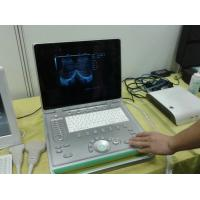 China Popular 3D Digital Laptop Veterinary Ultrasound Scanner Lightweight Easy To Carry wholesale