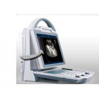 China Home Ultrasound Machine Portable Ultrasound Scanner with Only 4.5kgs Weight wholesale